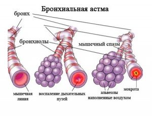 Бронхиальная астма – лечение бронхиальной астмы народными средствами